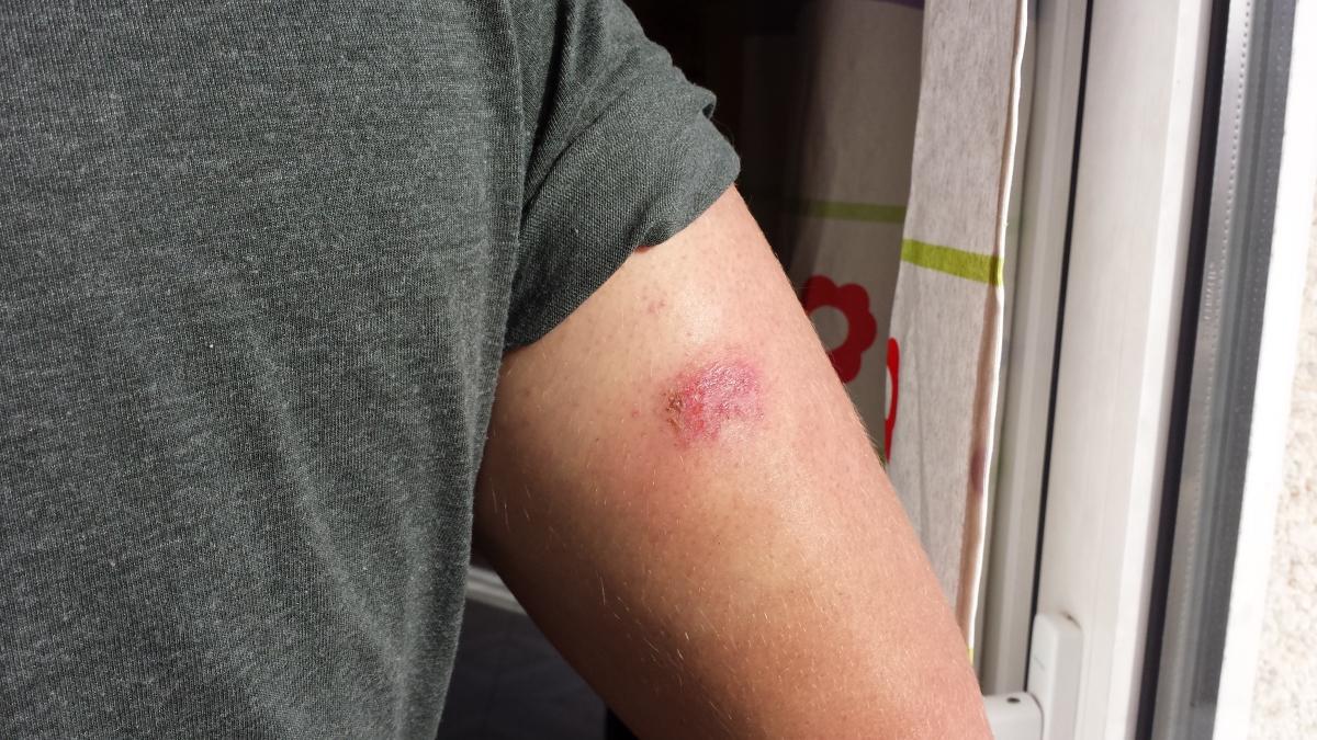 Irritación provocada por el sensor FreestyleLibre
